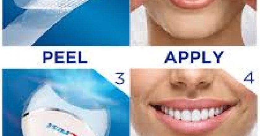 Zambet de nota 10 si dinti mai albi