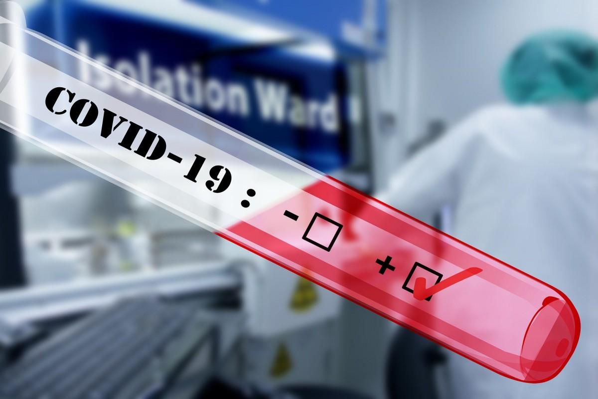 COVID-19: capacitatea de testare la Cluj va creşte la aproximativ 700 de probe pe zi